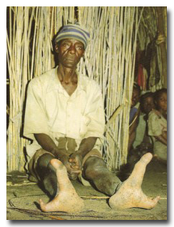 "... known as the ""ostrich people"" or the ""two-toed tribe"